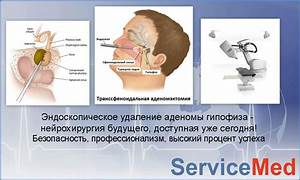 Лечение гомеопатией аденомы гипофиза