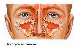 Лекарство от простатита витапрост форте отзывы