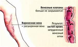 Касторовое масло в лечении псориаза