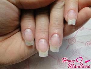 Грибок ногтей при сахарном диабете лечение