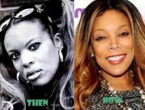 <b>Wendy Williams</b> Before Surgery | newhairstylesformen2014.com